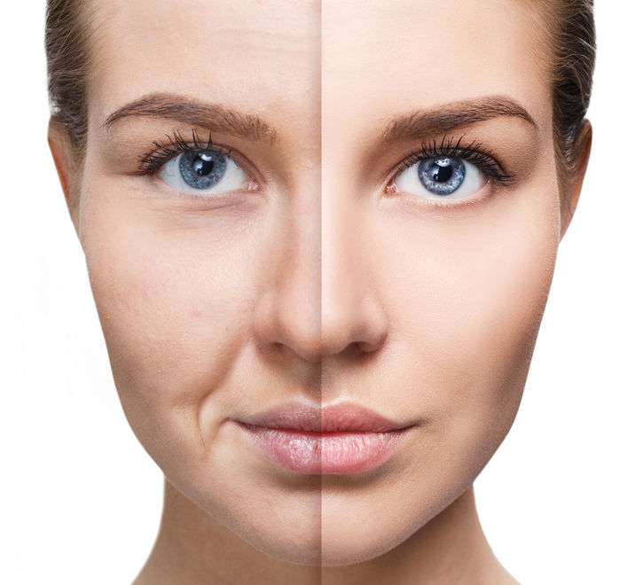 Full Face Lift - a comprehensive approach