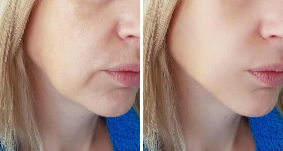 Jawline sculpting with fillers